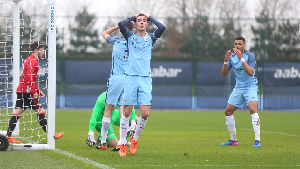 HEAD IN HANDS: Ed Francis reacts as City miss a golden chance against Manchester United